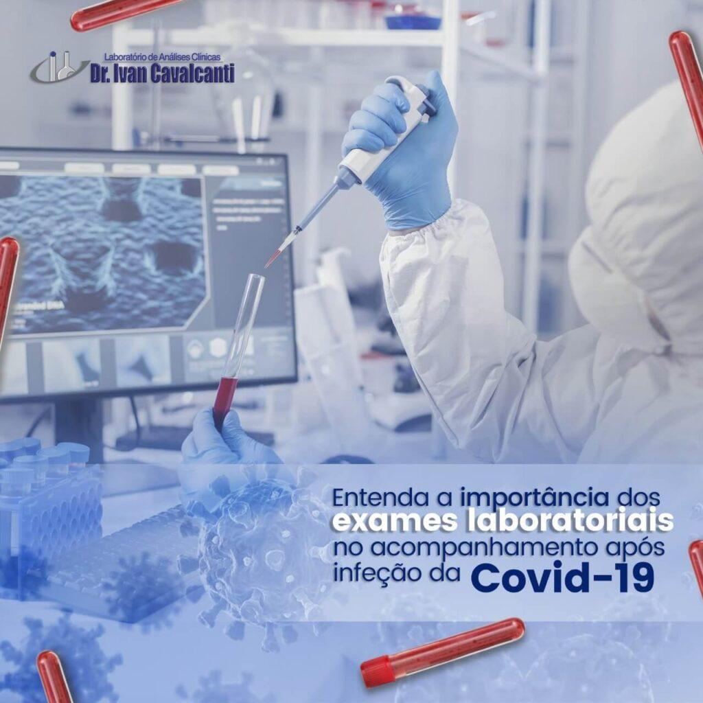 exames laboratoriais covid 19