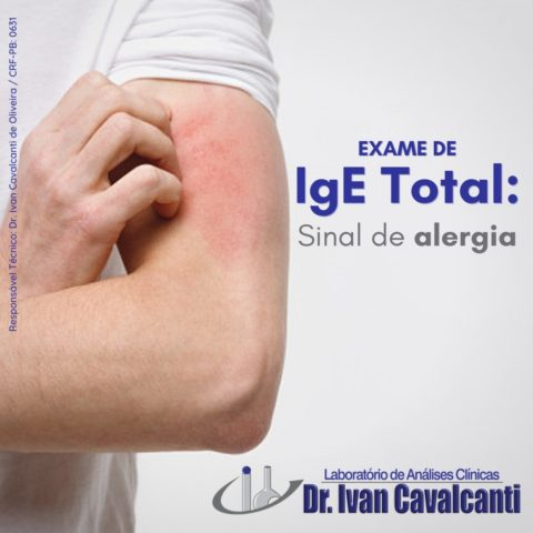 igte total