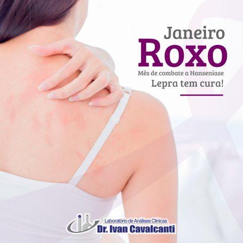 Janeiro Roxo, Mês de combate a Hanseníase Lepra tem cura!